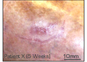 wound closure clinical trial